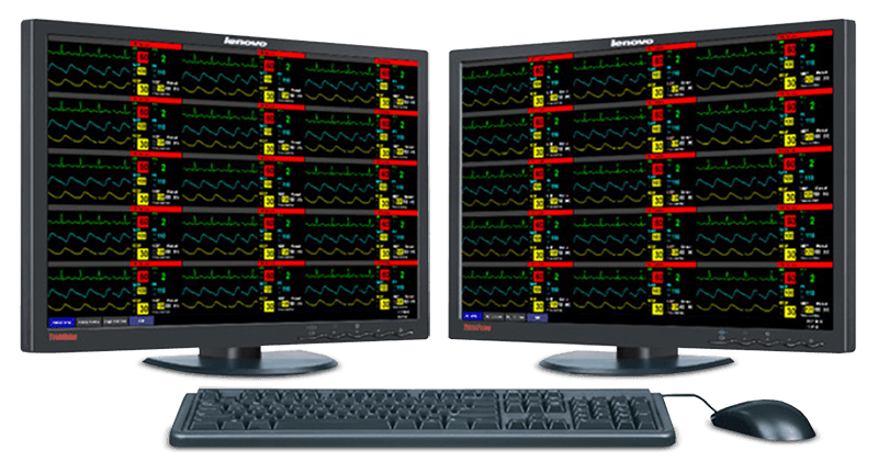 Datalys CMS Computer